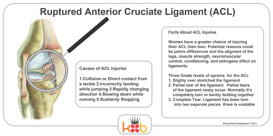 the causes effects and management of anterior crucial ligament acl injuries