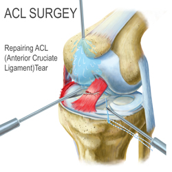 Kingbrand Illustration of Urgery for an ACL Tear