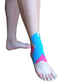Ankle Sprain Tape Application