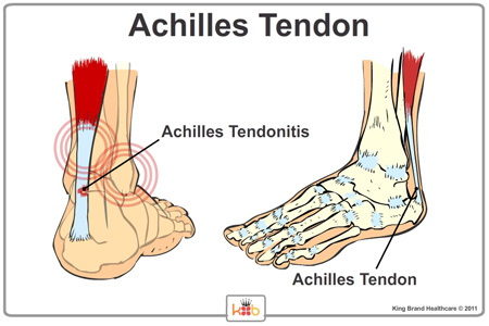 X-Ray View of the Achilles Tendon Showing Where Achilles Tendonitis Occurs