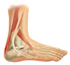 X-Ray View of the Ligaments of the Ankle