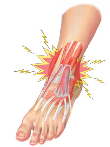 Ankle Extensor Tendonitis Treatment