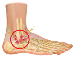 King Brand Ankle Ligament Injury