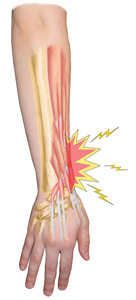 Arm Extensor Tendonitis