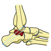 Ankle Arthrodesis Surgery Bones Joint