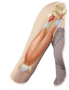 Bicep Tendonitis Treatment