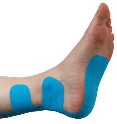 Insertional Achilles Tendonitis Taping Guideline