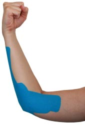 Golfers Elbow Tape Application