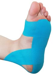 Plantar Fasciitis Tape Application