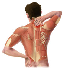 Back Pain and Strains
