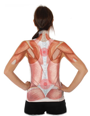 X-Ray View of Pain Locations in the Back