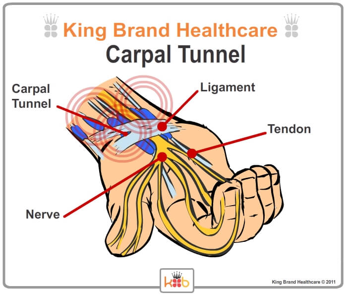 King Brand® Carpal Tunnel Injury Solutions BFST and Coldcure Wraps Labelled Diagram Ligaments Nerves Tendons