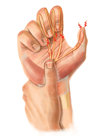 Wrist Injury Treatment
