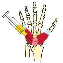 An illustration of a hand with Carpal Tunnel syndrome being injected with a cortisone shot
