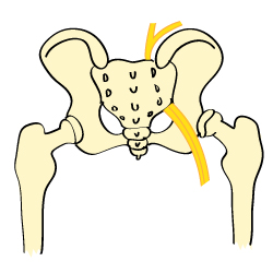 An Illustration of a Hip With Sciatica