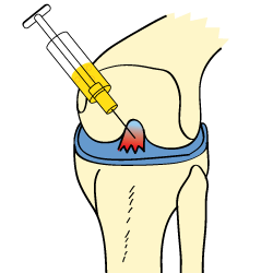 King Brand Cortisone Treatment Torn ACL