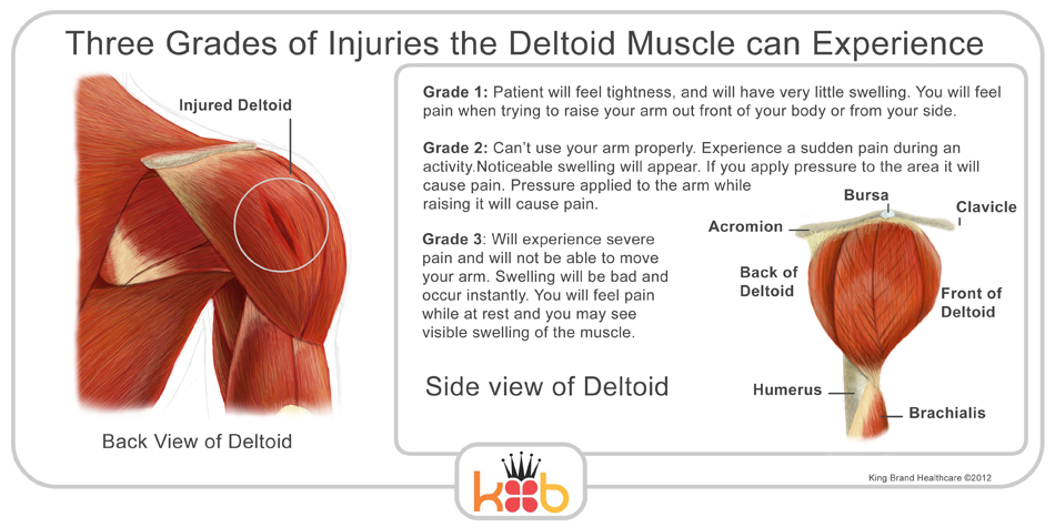 King Brand Shoulder Injury Three Grades of Injuries the Deltoid Muscle can Experience Back and Side View Labelled Diagram Information and Explanation