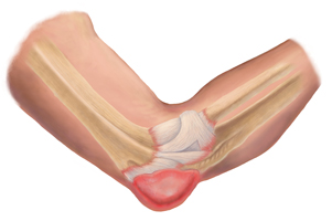 An Illustration of an Elbow Bursitis Injury