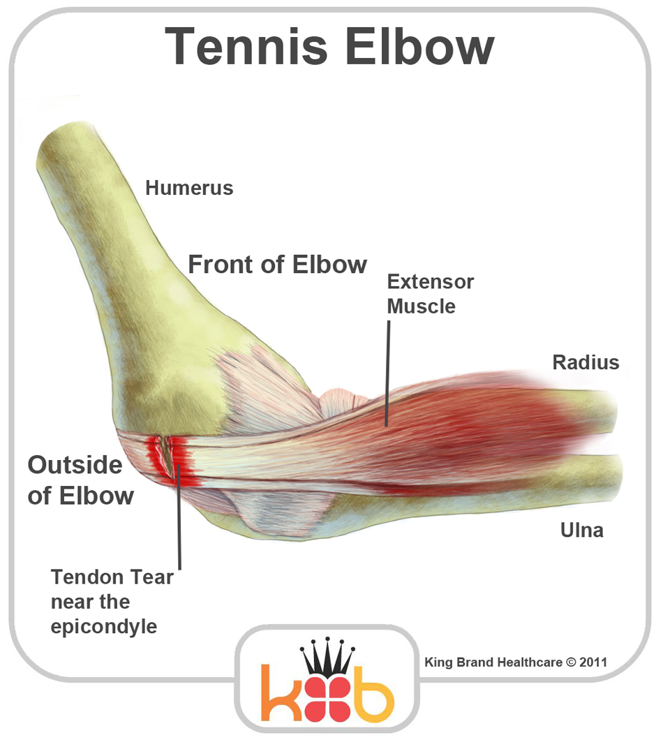 Tennis elbow. Coursework Service