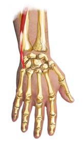An illustration of a hand with Extensor Carpi Ulnaris Tendonitis