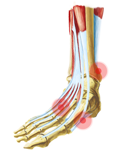 Skeletal View of a Foot With Pain Points