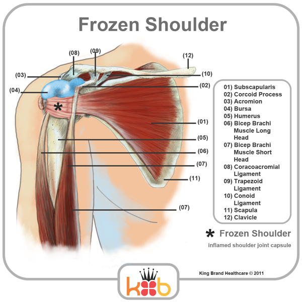 King Brand Frozen Shoulder Treatment Inflamed Joints Diagram Labelled Muscles Tendons Bones Front View