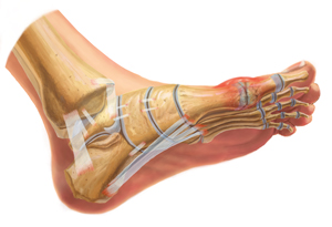 An Internal View of Gout in the Foot
