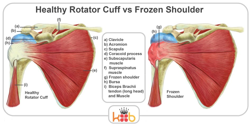 King Brand Shoulder Injury Solutions Frozen Shoulder Compared to Healthy Rotator Cuff Muscles Bones