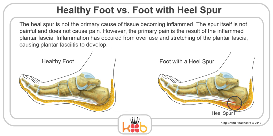 King Brand Foot Injury Heel Spur and Healthy Foot Comparision Causes Information and Illustration