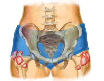 X-Ray View of a Hip Bursitis Injury