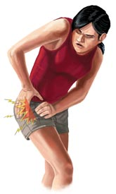 An Illustration of a Woman With Hip Bursitis