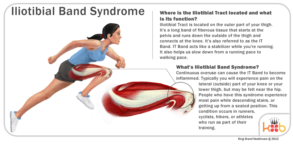 A Detailed Diagram of Illiotibial Band Syndrome