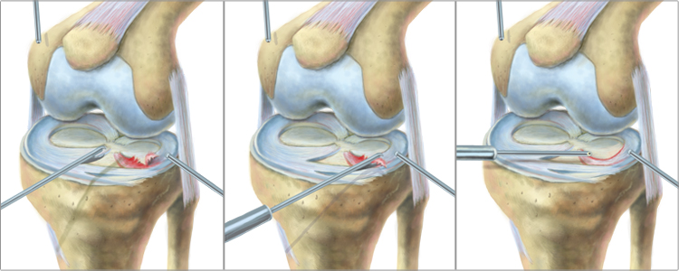 King Brand Meniscus Surgery Knee Diagram Image Meniscectomy