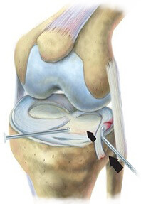 King Brand Meniscus Tear Surgery BFST Coldcure Diagram Image Knee Injury