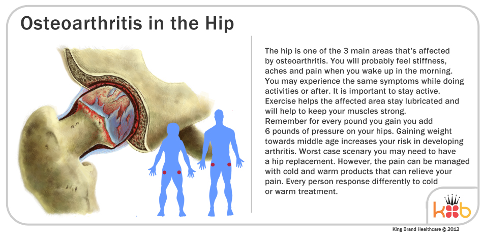 Informational Diagram of Osteoarthritis in the Hip