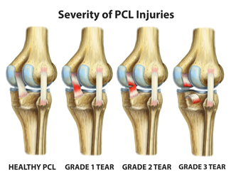 King Brand BFST Coldcure Different Grades of PCL Tears Knee Injury Diagram Image