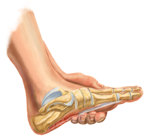 Plantar Fasciosis Treatment