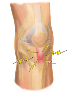 King Brand Patellar Tendonitis Treatment