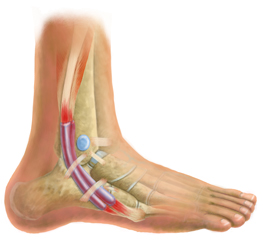Foot Tendonitis Treatment
