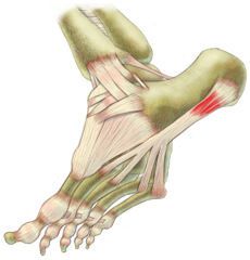 Use KingBrand to treat your Plantar Fasciitis professionally