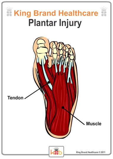 King Brand Foot Plantar Injury Muscle Tendons Diagram Illustration