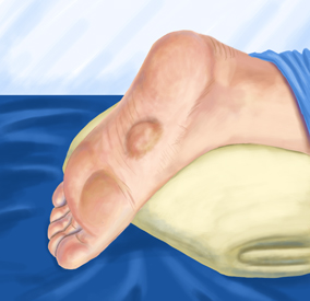 Plantar Fibroma Treatment
