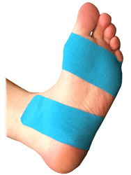 Plantar Fibroma Tape Treatment