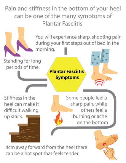King Brand Plantar Fasciitis Infographic Important Facts and Information