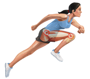 An Illustration of a Runner With Illiotibial Band Syndrome