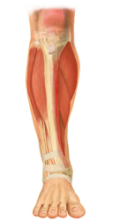An Internal Drawing of a Leg with Shin Splints