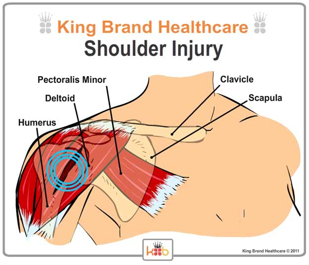 King Brand Labelled Diagram of Shoulder Injury and Treatment Area Front View Muscles and Bones