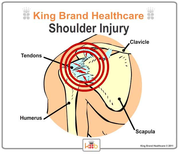 King Brand Labelled Diagram of Shoulder Injury and Treatment Area Front View Zoom Close Up Bones