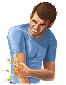 An Illustration of a Man in Pain Due to their Tennis Elbow Injury