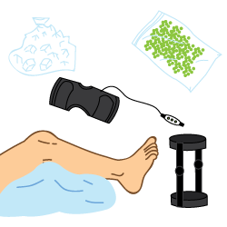LCL Injury Treatments Illustration